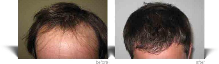 Hair Surgery in the UK with Enhance Surgical