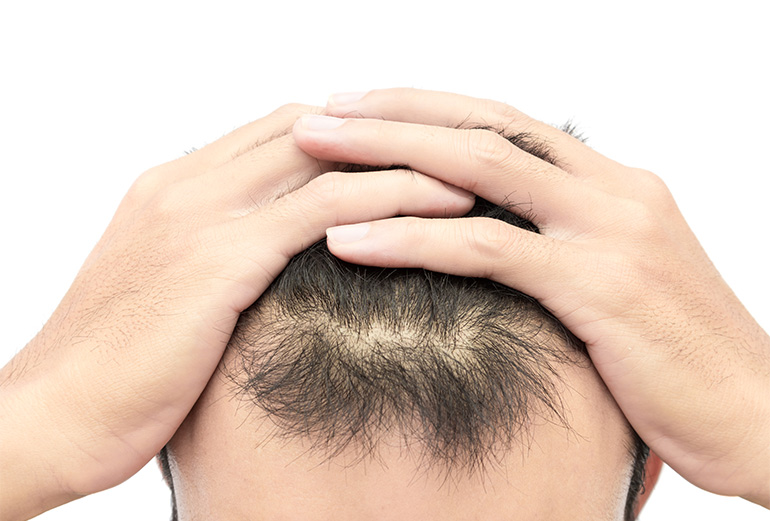 Hair Loss - About Hair Loss